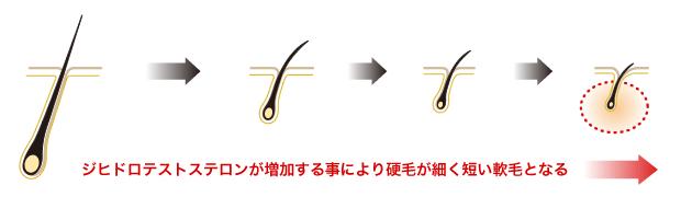 『AGAの進行プロセス』ジヒドロテストステロンが増加することによって硬毛が細く短く軟毛となる
