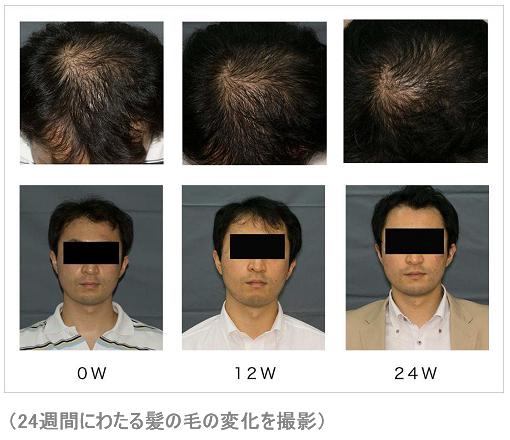 フィンジアを使用した際の24週間にわたる髪の毛の変化を撮影
