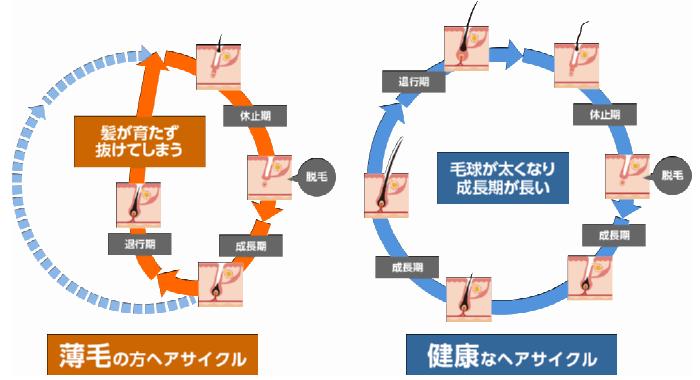 健康なヘアサイクルと薄毛のヘアサイクルの比較。