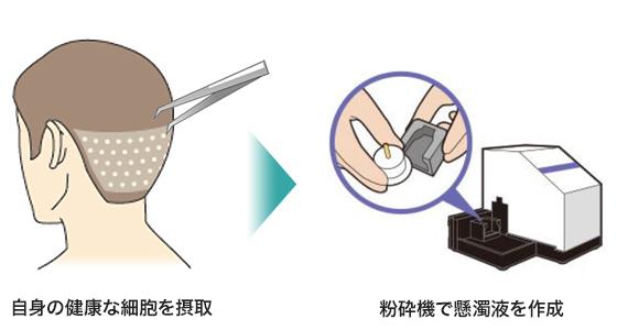 湘南美容クリニックのダブルマトリックスはあなた自身の健康な細胞を採取して、粉砕機で懸濁液を作成します。