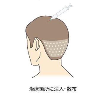薄毛が気になる治療科所に有効成分を注入・散布します