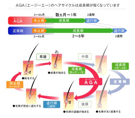 AGAのヘアサイクルは成長期が短くなっています。