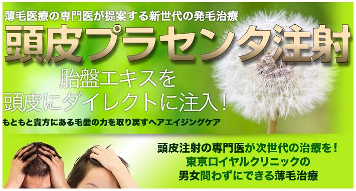 頭皮プラセンタ治療