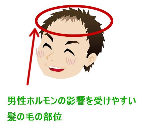 男性ホルモンの影響を受ける髪の毛